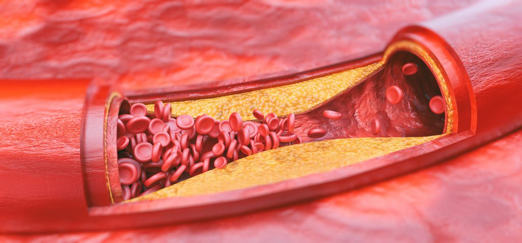 You're Only As Old As Your Arteries